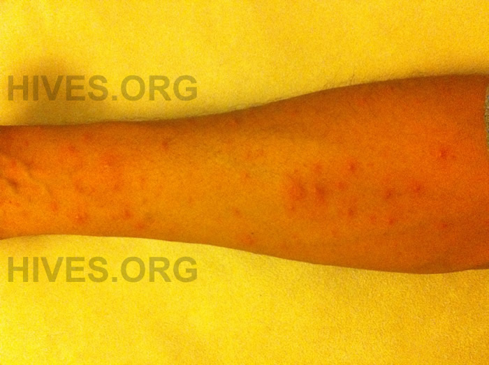 picture of hives on arm