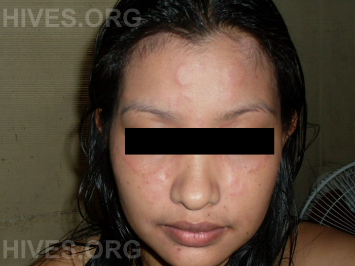 hives on face picture